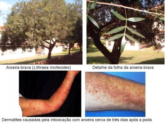 aroeira-dermatite