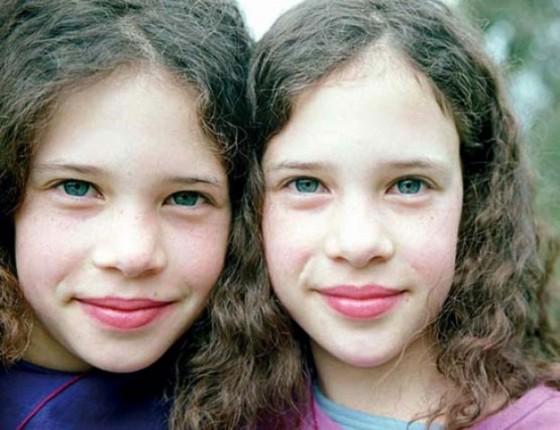 gemelos monocigoticos