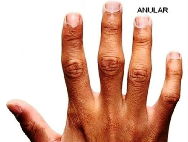 Dolor dedo anular mano izquierda